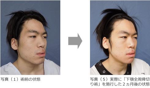 顎を短くする方法は何がある?自分で出来る方法と …