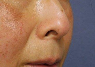 鼻 の 穴 切れる